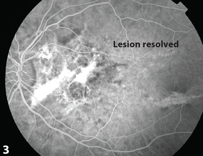 Figure 3 Resolution Of Lesion Demonstration Durring Aterio Venous Phase FFA Post Treatment
