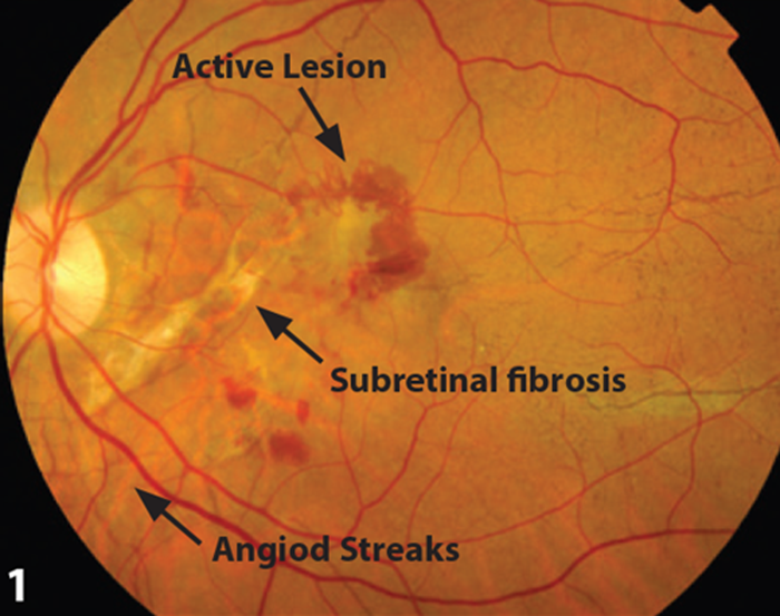 Figure 1 Fundal Photo Demonstrating Active Lesion And Angiod Streaks