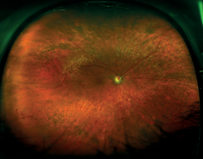 Figures 6 And 7 Retinal Vein Occlusion Ultra Widefield Images Courtesy Of Optos