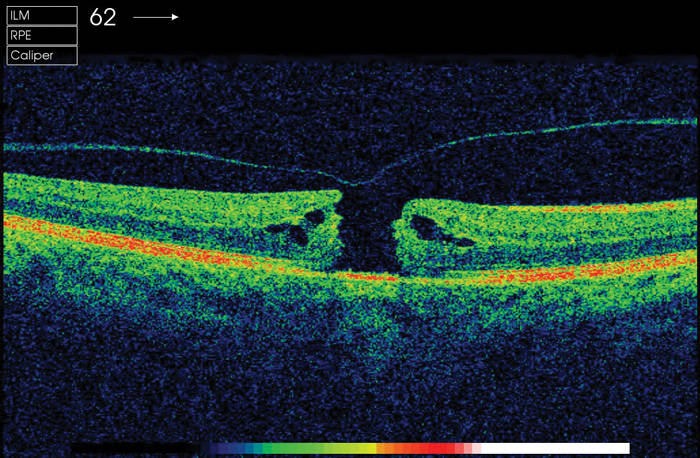 Macular holes: A brief review | Eye News