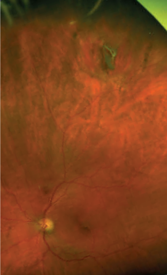 Figure 2 Wide Angle Optos Fundus Photography Of The Peripheral Tear And Pigmented Membrane Same Eye As 1 Some Eyelashes From Upper Lid